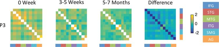 Fisher-transformed correlation matrix for the resting state data for P3 (who showed persistent moderate naming deficit) at each time point. Difference map shows the difference in correlation between the 5–7 month scan and the 0 week scan for the resting-state data. Correlations were assessed across 12 ROIs in the language network corresponding to the left and right inferior frontal gyrus (IFG), superior temporal gyrus (STG), middle temporal gyrus (MTG), inferior temporal gyrus (ITG), supramarginal gyrus (SMG), and angular gyrus (AG).