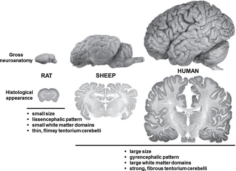 Comparison between rodent, ovine and human brain. Although significantly smaller than the human brain, the ovine brain is also gyrencephalic and exhibits a grey-to-white-matter ration more similar to humans as compared to the rodent brains. Sheep are therefore considered an interesting model species for translational neuroscience.