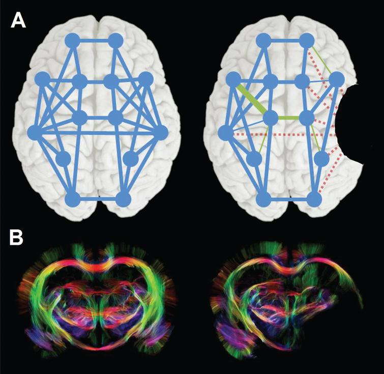 Changes in neural network connectivity after stroke. (A) Schematic representation of a neural network in human brain before (left), with nodes and edges in blue, and after stroke (right), illustrating global disconnection (red dotted edges) and reorganization (green edges) as a result of a focal stroke lesion (black area). (B) Diffusion tensor imaging-based fiber tractography maps of control (left) and 10-weeks post-stroke rat brain (right), showing altered fiber pathway patterns in perilesional white matter chronically after stroke. Stroke was induced by 90-min intraluminal occlusion of the right middle cerebral artery in adult male Sprague Dawley rats. High angular (120 directions) and spatial resolution (0.2mm isotropic voxels) diffusion-weighted MRI data were acquired post mortem on a 9.4 T animal MRI scanner (total scan time: 26h). MrTrix3® software (http://www.mrtrix.org/) was used for diffusion-based tractography. Courtesy of Michel Sinke and Willem Otte.
