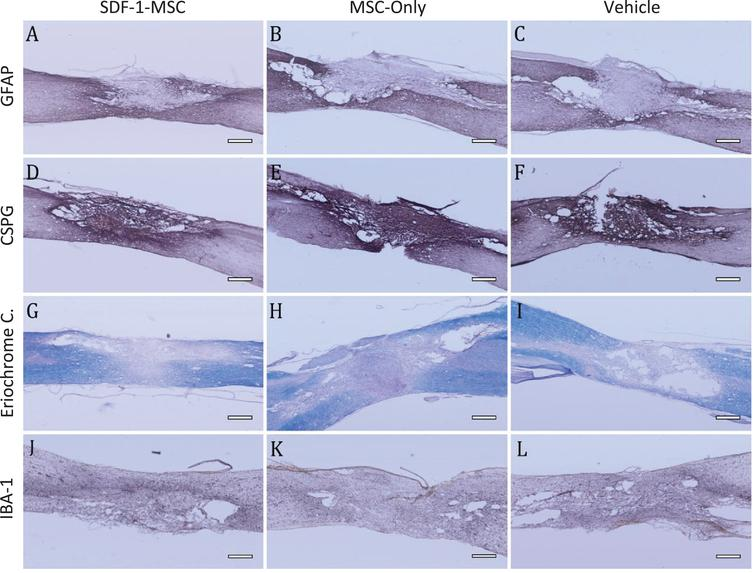 Immunohistochemistry GFAP, CSPG, Eriochrome Cyanine, IBA-1. (A-I) Immunohistology was performed to analyze major histopathological outcomes for astrocytes as measured by GFAP (A-C), for proteoglycans as measured by CSPG (D-F), for white matter pathology as measured by eriochrome cyanine staining (G-I), and for inflammation as measured by IBA-1 (J-L). No significant differences could be detected between SDF-1-MSC (A,D,G,J), MSC-only (B,E,H,K), or vehicle (C,F,I,L) groups. Areas of the lesions can be identified by clear boundaries in CSPG and GFAP labeling. Tissue within the lesion area is void of immunological labeling for GFAP, but dense in CSPG labeling. Scale bars represent 500-μm.