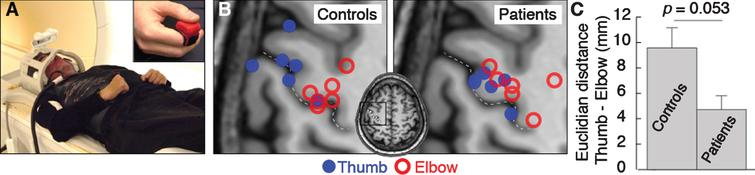 (A) Experimental setup. (B) Activation center of gravity for thumb (blue) and elbow (red) flexion activations in control participants and patients. The central sulcus is indicated by the dotted line. (C) Mean cortical distance between thumb and elbow flexion activation centers of gravity for control participants and patients. Error bars indicate standard error of the mean. Significance of the planned comparison (one-tailed t-test) is shown.