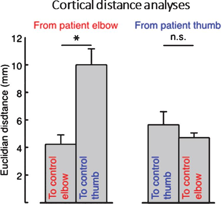 Average cortical distances between patients' elbow and thumb flexion activation centers of gravity (CoGs) and control participant's CoGs, showing that the distance from patient's elbow CoG to the average control participant's elbow CoG was significantly smaller than the distance from patient's elbow CoG to the average control thumb CoG, whereas patient's thumb CoG was not more near neither the average control's thumb or elbow CoG. Error bars indicate standard error of the mean. Significance of planned comparisons (one-tailed t-tests) are denoted as follows:  *p < 0.05, n.s. p > 0.05.