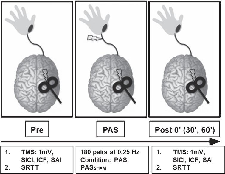 Experimental paradigm. During the PAS protocol 180 pulse pairs using an interstimulus interval of N20+5ms at 0.25Hz were delivered over the median nerve and primary motor cortex. Measures of corticomotor excitability (1mV, SICI, ICF, SAI) and motor skill performance (SRTT) were assessed at baseline, immediately following PAS (POST 0) and at 30 and 60 minutes following PAS (POST30 an POST60). (SICI: short interval cortical inhibition, ICF: intracortical facilitation, SAI: short afferent inhibition, SRTT: serial reaction time task).