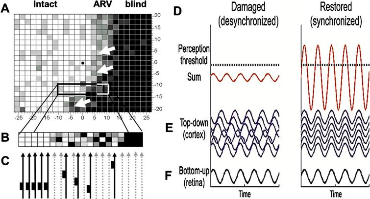 Residual vision and brain network amplification. (A) This graph serves only as a conceptual guide to appreciate the nature of residual vision and the interactions of retina and brain by neuronal oscillatory activity. Accordingly, vision loss (e.g. measured by detection ability) depends on how many cells are lost: the greater the cell loss, the greater is the defect in different regions of the visual field. Areas of residual vision (ARVs; shown in grey) correspond to regions of partial damage with or without vascular dysregulation. They are found in all kinds of visual field defects such as after stroke (e.g. hemianopia) or retinal or optic nerve damage (e.g. glaucoma). Black areas represent complete damage. Note, however, that many black regions may, in fact, have some residual visual function as well. (B) Whether or not visual stimuli processes by the retina are consciously perceived by the brains is not only determined by the strength of the neuronal signals sent by the retina to the brain, but it also depends on how the brain processes this information through synchronization, amplification and interpretation. Neural activity of the retina is represented here by a simple sine wave. If the brain network is disorganized (illustrated here by non-synchronized, out-of-phase brain sine waves), the sum of retinal and brain signals is too low to surpass the perceptual threshold and the visual stimulus is not perceived. When the brain is synchronized, this elevates (amplifies) the same residual visual signal to above-threshold perception, thus improving or restoring conscious vision.
