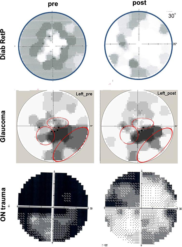 """Activating residual vision. Examples of visual field recovery of three patients before and after treatment with alternating current stimulation (ACS); Top and middle panel: visual fields of a case with diabetic retinopathy and open-angle glaucoma before and after 10 days. The visual fields on the bottom is from a 27 year old male suffering from traumatic brain and optic nerve damage before and after 10 days of ACS with an additional 3 months of relaxation and eye yoga exercises. Note that visual field recovery emerges mostly from the grey regions (relative scotomas or """"areas of residual vision""""). Red circles indicate regions of vision recovery."""