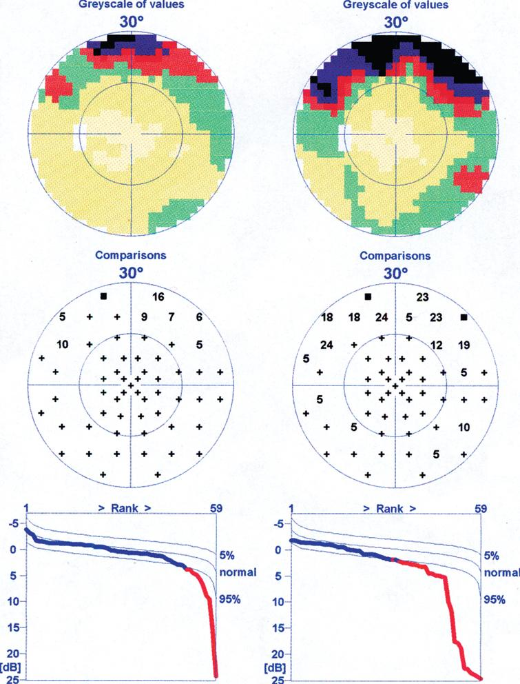 An example of visual field deterioration after cold provocation in a patient with both normal tension glaucoma and Flammer syndrome. Left: before cold provocation (VF-1). Right: after cold provocation (VF-2).