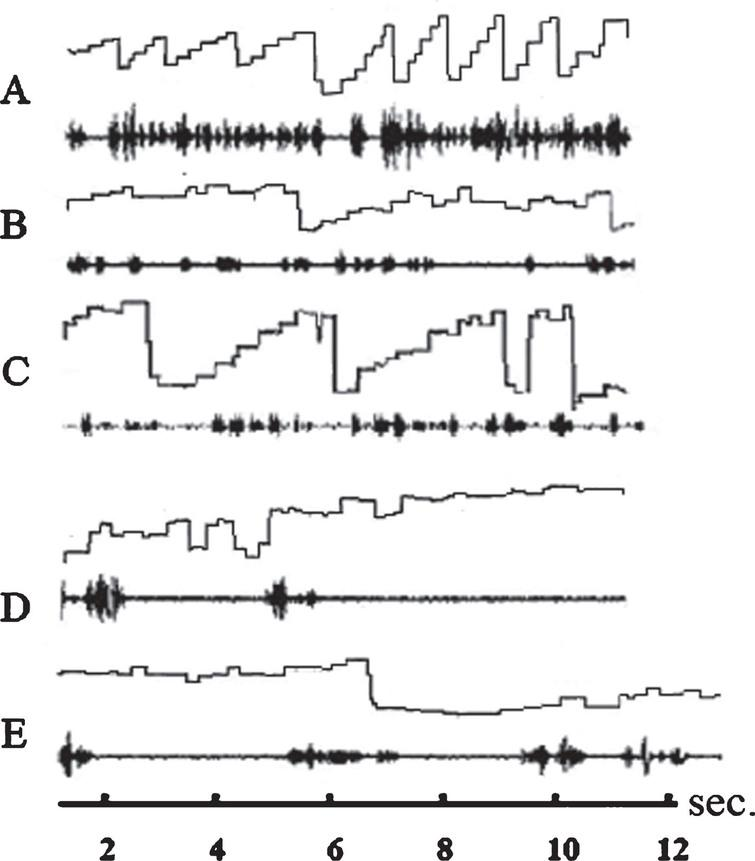 Eye movements and speech recording of three subjects while reading a text from the ZLT. Abscissa: time axis; ordinate: amplitude of eye movements. Ascending line: eye movement to the right; descending line: eye movement to the left. The spectrogram of the reader's language is displayed below each graphic representation of eye movements. A: ideal staircase eye movements of a good reader (not included in the study). B: eye movements and speech spectrogram of a dyslexic reader before therapy. The subject is reading slowly with only few staircase-like eye movements and many eye movements against the reading direction (reversions). C: eye movements and speech spectrogram of the same subject after therapy. Sequences during which the subject performs staircase-like eye movements are more frequent than before therapy but there are still many reversions. D: eye movements and speech spectrogram of a dyslexic subject who is reading very slowly. The subject speaks only after having performed a series of searching eye movements. E: The subject performs more staircase-like eye movements but executes still many reversions. The speech is much more fluent. All subjects reduce reading mistakes after therapy by almost two thirds.