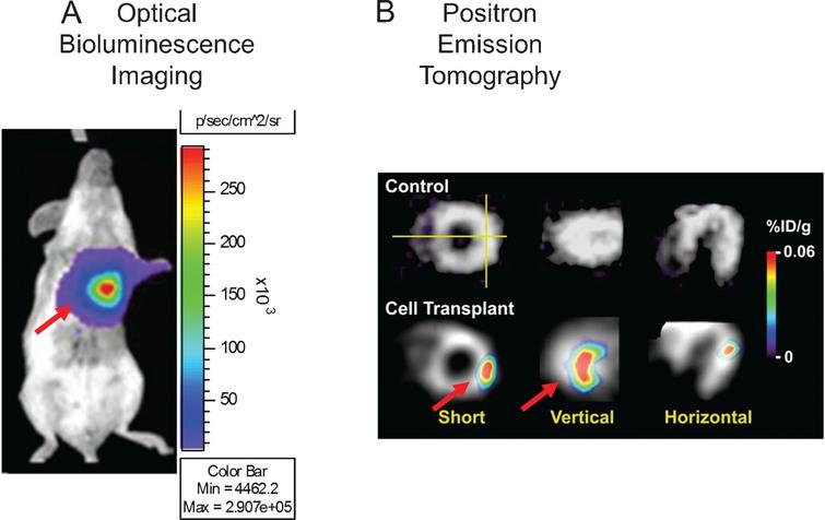 Examples of reporter gene imaging. Panel A, shows the different imaging modalities used in reporter gene imaging, such as optical bioluminescence imaging (left), and radionuclide medicine imaging (PET-right). Subjects are placed in the cooled CCD camera system or scanner, respectively, and the substrate administered. Panel B presents examples of cell imaging using a reporter gene approach using the previously mentioned modalities. On the left panel, cells are genetically modified to carry the optical fluc reporter gene, delivered to the myocardium, and also imaged using a CCD camera after administration of the substrate D-Luciferin. Color images of visible light are superimposed on photographic images of mice with a scale in photons per second per square centimeter per steradian (sr). On the right panel, cells carrying the PET reporter gene HSV1-tk have been transplanted to the myocardium. The figure depicts tomographic images of the myocardium after the administration of the PET reporter probe 18Fluorine 9-[4-fluoro-3-(hy{droxy methyl)butyl]guanine (18F-FHBG). The color scale (% ID/g) indicates the percentage of injected dose that accumulates per gram of tissue. Red arrows indicate the area where cells are located. Reprinted from Cao F, et al. In Vivo Visualization of Embryonic Stem Cell Survival, Proliferation, and Migration After Cardiac Delivery. Circulation 2006; 113(7):1005-1014 and Lijkwan MA, et al. Trends Cardiovascular Medicine 2010; 6:183-8 with permission.