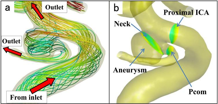 Definition of vascular model. (a): The vascular and aneurysm model with streamlines showing a spatial relationship between inlet and outlets. The streamlines from the inlet, at the proximal site of the internal carotid artery (ICA), run to both the aneurysm and distal site of the ICA, which finally flow into outlet vessels, including the posterior communicating artery (Pcom). (b): The neck plane is defined as just distal to the Pcom bifurcation. The proximal ICA and Pcom planes are defined as 1 mm from the aneurysm.