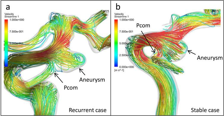 Streamlines of the representative cases. (a): Streamlines of the pretreatment vascular model of the recurrent case in Fig.2 show that the velocities of Pcom and ICA were almost 25 to 50 cm/s and 75 to 100 cm/s, respectively. These results correspond to the velocity ratio of 0.397. (b): Streamlines of the representative stable case in Fig.2 show that the velocities of Pcom and ICA were 75 to 100 cm/s and almost 100 cm/s, respectively, which were consonant with the velocity ratio of 0.793.