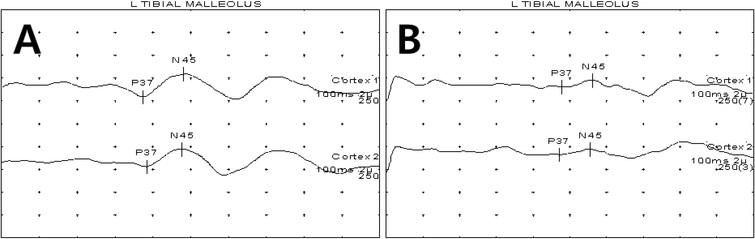 Examples of SSEP graphs for patients with normal (A) and abnormal SSEPs (B). SSEP data were classified into (A) a normal sensory group (normal latency; P37 < 41.7 ms) and (B) an abnormal sensory group (delayed latency; P37 ⩾ 41.7 ms). SSEP: somatosensory-evoked potential.