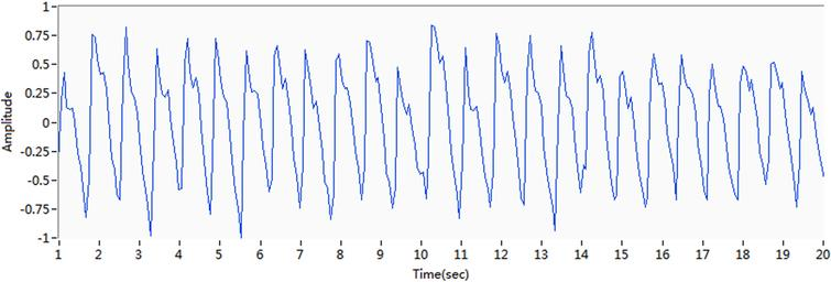 Change in phase shift after removal of the baseline drift.