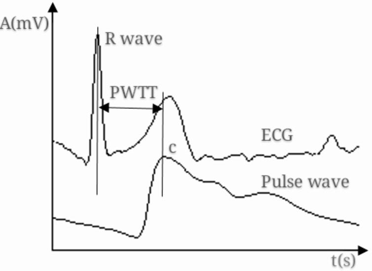 PWTT measurement from ECG and pulse wave signals.