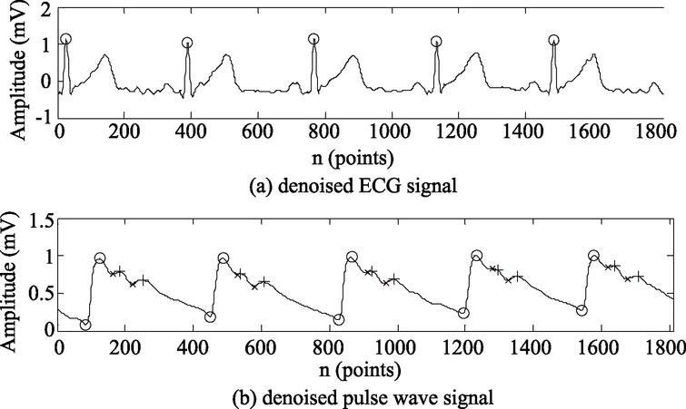 Feature point recognition of the denoised ECG and pulse wave signals.