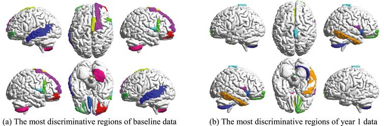 The selected most discriminative brain regions.