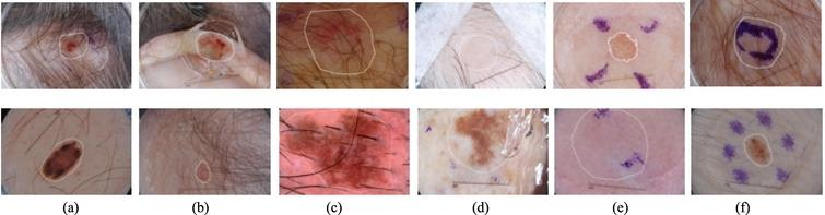 Illustration of challenges of automatic segmentation of skin lesions in dermoscopy images. The main challenge includes distinguishable inter-class, indistinguishable intra-class variations, artifacts and inherent cutaneous features in natural images. (a–c) skin lesions are covered with hairs or exploded with blood vessels; (d) air bubbles and marks occlude the skin lesions; (e–f) dye concentration downgrades the segmentation accuracy. Note that white contours indicate the skin lesions.