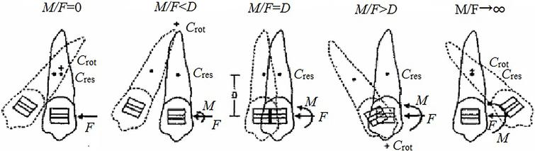 Relationships between tooth movements and orthodontic force systems.