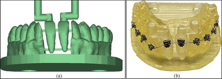 Simulated dental model, (a) digital model; (b) physical model assembled with brackets and archwire.