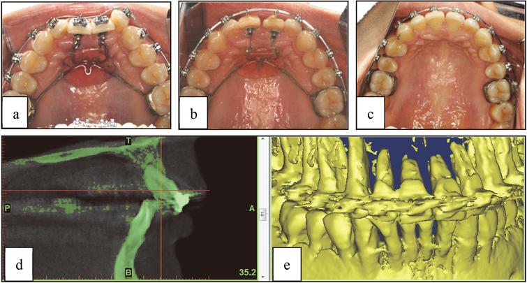 Clinical feedback, (a) before treatment, (b) after 9months, (c) after 18months, (d) CT image and (e) digital model after 18months of treatment.
