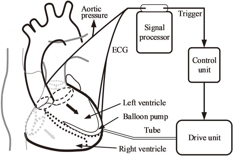Schematic of a typical intra-ventricular assist device.