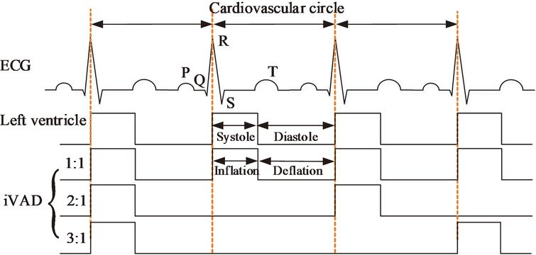 Illustration of the pulsatile rhythm of the left ventricle and the intra-ventricular assist device.