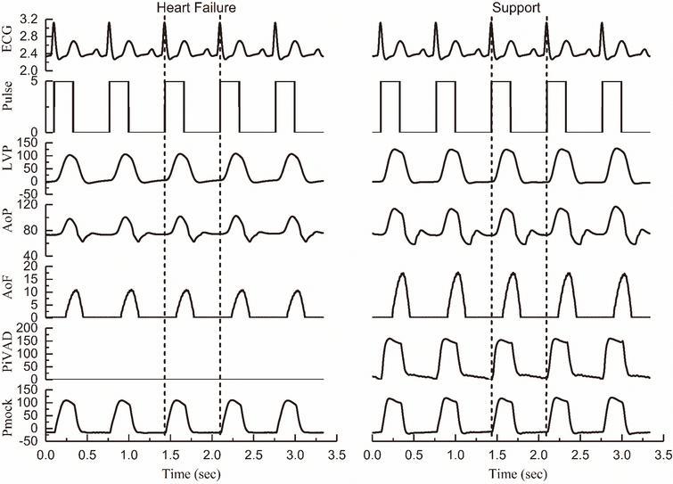 Comparison of the hemodynamics of failure heart and an iVAD support (ECG: V; Pulse: V; LVP: mmHg; AoP: mmHg; AoF: L/min; PiVAD: mmHg; Pmock: mmHg).