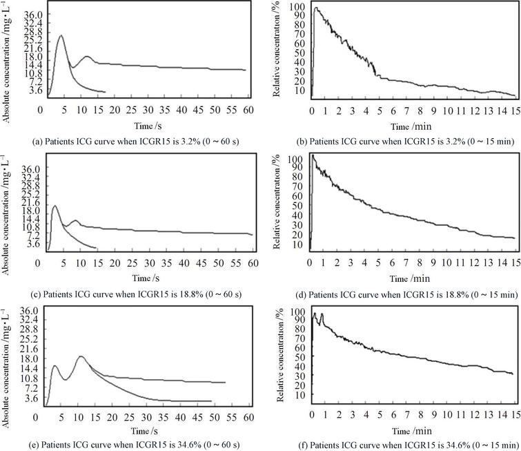 ICG curves of different suspected primary liver cancer patients.