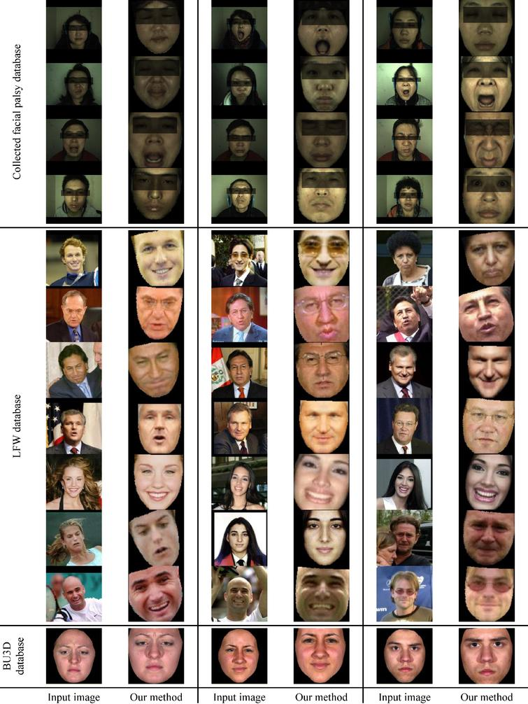 Samples of the experiment results for facial symmetrization on collected facial palsy images, LFW database and BU3D database. It is noticeable that some test examples with large facial performances, head poses or facial occlusions like shades, can be well handled by the proposed model, whereas those conditions can pose more challenges for traditional facial landmark localization based approaches.