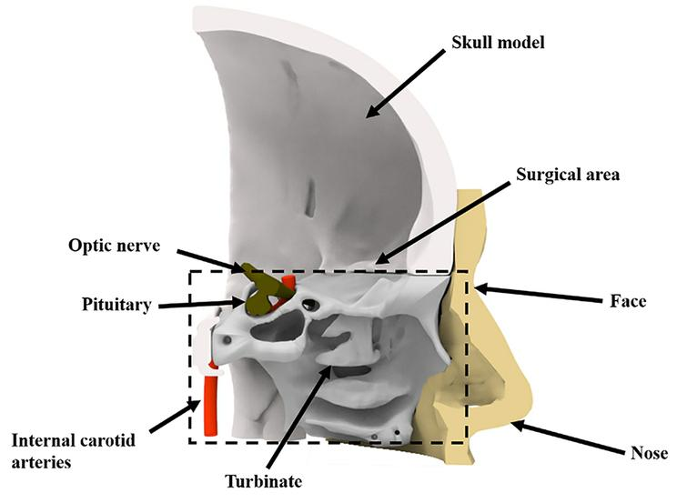 Cutaway view of the digital model. (The surgical area contains the nasal cavity and the sellar region.)