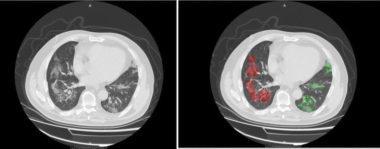 CT visual score of severe COVID-19 pneumonia.