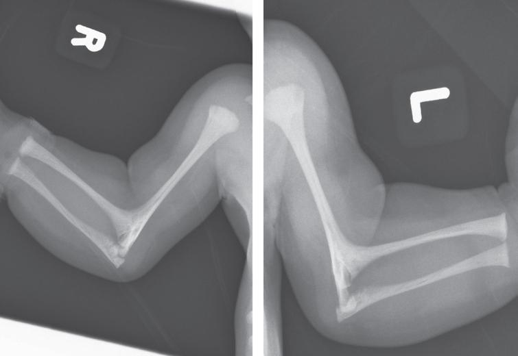 Radiographs of right and left upper limbs in the patient from Fig. 11 showing bilateral radiohumeral synostosis. (Courtesy from Malgorzata J.M. Nowaczyk, MD, McMaster University, Hamilton, Canada).