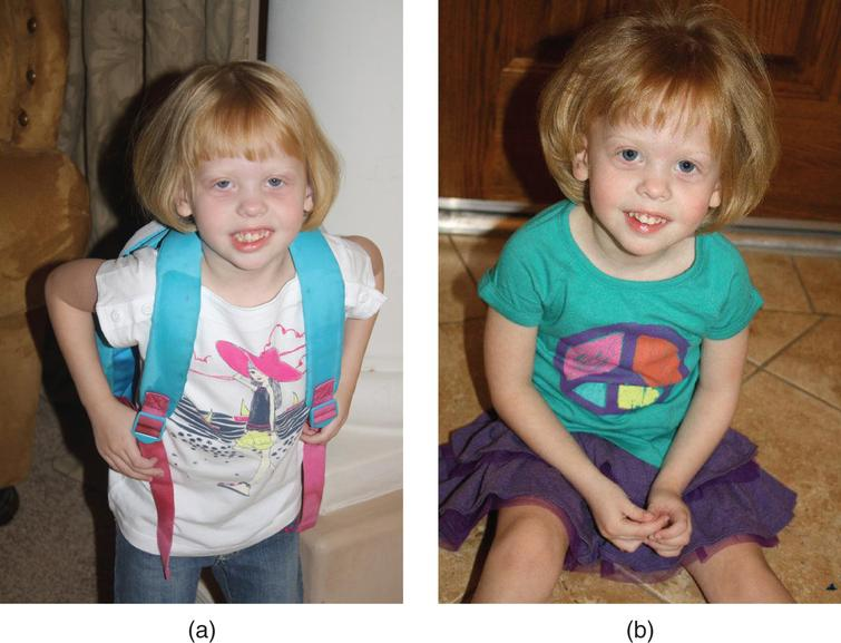"""a, b. 2-year-old girl with """"mild"""" RSH/SLO syndrome diagnosed clinically (2/3 toe syndactyly!) at 17 months; confirmed biochemically by Dr. R.I. Kelley (7DHC: 86 mcg/nL, cholesterol: 102mg/dL. Being followed by Dr. F.D. Porter at the NIH and Dr. R.D. Steiner at OHSU/Portland. The latter has determined 2 different mutations in the DHCR7 gene (R450L and N407K). She was born normally but developed reflux, failure to thrive, sleep disturbance, mild developmental and growth delay. Cholesterol treatment appeared to lead to a deterioration of behavior; Simvastatin treatment (Jira et al., 2000) did not appear to affect development. Now toilet-trained and in 3rd grade (special education)."""