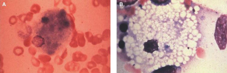 "Niemann-Pick disease. (A) A sea-blue histiocyte is present in the marrow. These cells are predominantly seen in types C and F. (B) A histiocyte in the bone marrow has a ""soap-bubble"" appearance and measures 60 to 80 μm in diameter."