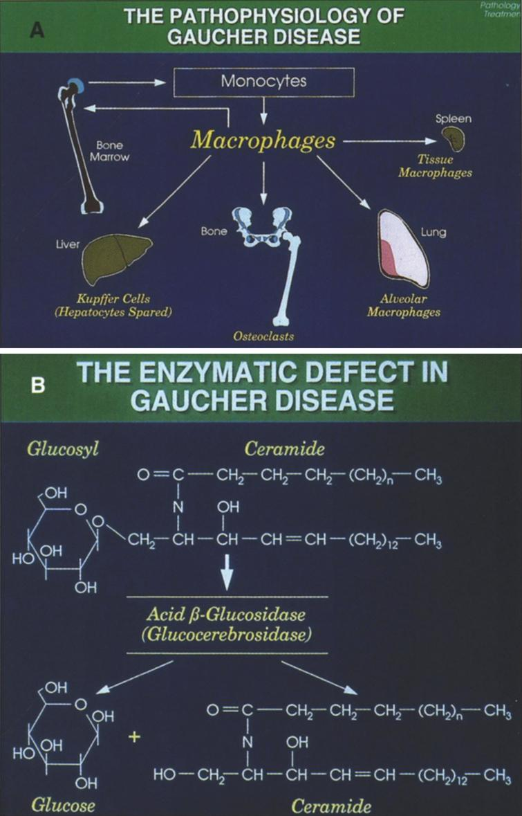(A) The pathophysiology of Gaucher disease. It should be noted that this macrophage-centric view of the disease has recently been called into question, since it does not explain certain aspects of the disease such as the predisposition to malignancy, osteoporosis or Parkinson disease (108). (B) The enzymatic defect in Gaucher disease. (From Gaucher Disease Diagnosis Evaluation and Treatment, Genzyme Therapeutics, Parsipanny, NJ; with permission.)