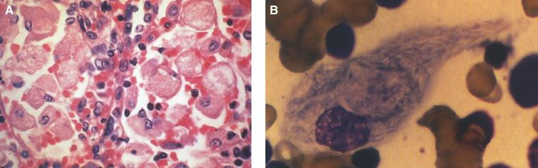 "Gaucher disease. (A) Microscopic section of the spleen. The sinusoids are filled with large distended storage cells. (B) The bone marrow contains a large Gaucher cell with cytoplasmic striations with typical ""crinkled tissue paper"" appearance."