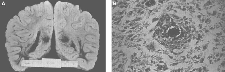 Krabbe disease. (A) Coronal section of the brain stained with oil red O. Only a few myelinated areas stain. The remainder of the white matter does not stain, indicating loss of myelin. (B) Microscopic section of brain with globoid cells in white matter. The brain does not store the substrate, galactosylceramide, but it stimulates infiltration of macrophages which transform to globoid cells. The increased levels of psychosine that occur have cytotoxic effects.