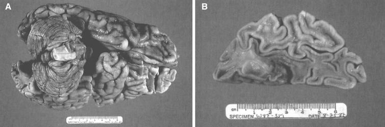 GM2 gangliosidosis type II (Sandhoff disease). (A) The brain shows atrophy of gyri. (B) On cross section, both gray and white matter are atrophic.