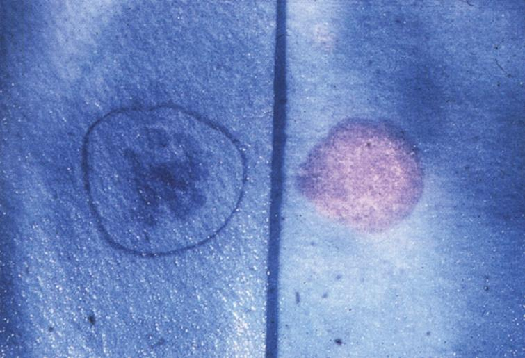 Metachromatic leukodystrophy. Urinary spot test showing metachromasia due to the presence of sulfatide (right) compared to normal (left).