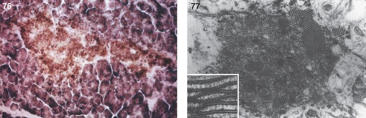 Metachromatic leukodystrophy. Section of the pancreas shows brown metachromasia in the acinar cells; (77) Metachromatic leukodystrophy. Electron micrograph of a neuron of the white matter shows pleomorphic and parallel crystalline lipid profiles. Inset, crystalline arrays at high magnification.