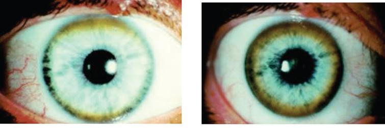 Appearance of Kayser-Fleischer ring in Wilson disease. Dark pigment at periphery of the cornea is due to deposition of copper.