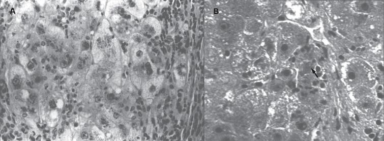 Wilson disease. (A) Microscopic section of liver in inflammatory reaction in the portal area. The hepatocytes contain copper pigment. (B) High-power view showing Mallory body (arrow).