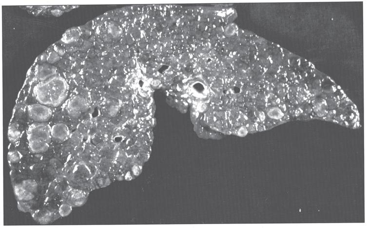 Gross appearance of cirrhotic liver in Wilson disease.