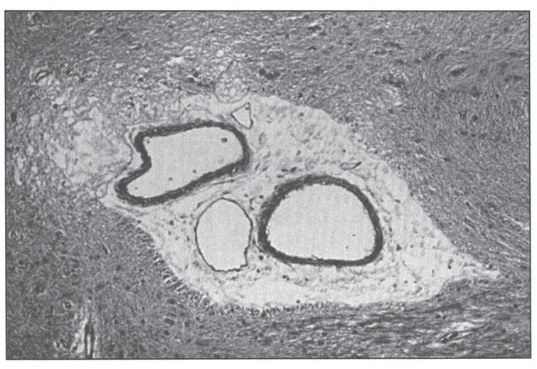 Section of cerebral white matter in Menkes disease showing telangiectatic capillary.