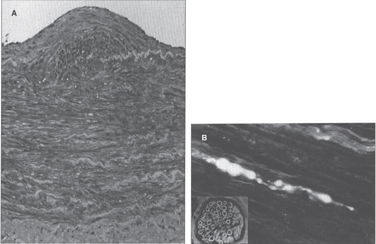 Menkes disease. (A) Microscopic section of the aorta showing disruption and piling up of elastic fibrils of internal elastic lamella. (B) Fluorescence photomicrograph of longitudinal section of peripheral nerve. Note torpedo-like swelling of intense fluorescence-positive axon. Inset shows cross section of peripheral nerve with nonspecific fluorescence of myelin sheath (formaldehyde-induced fluorescence). (Courtesy of Dr. Hideo Uno.)