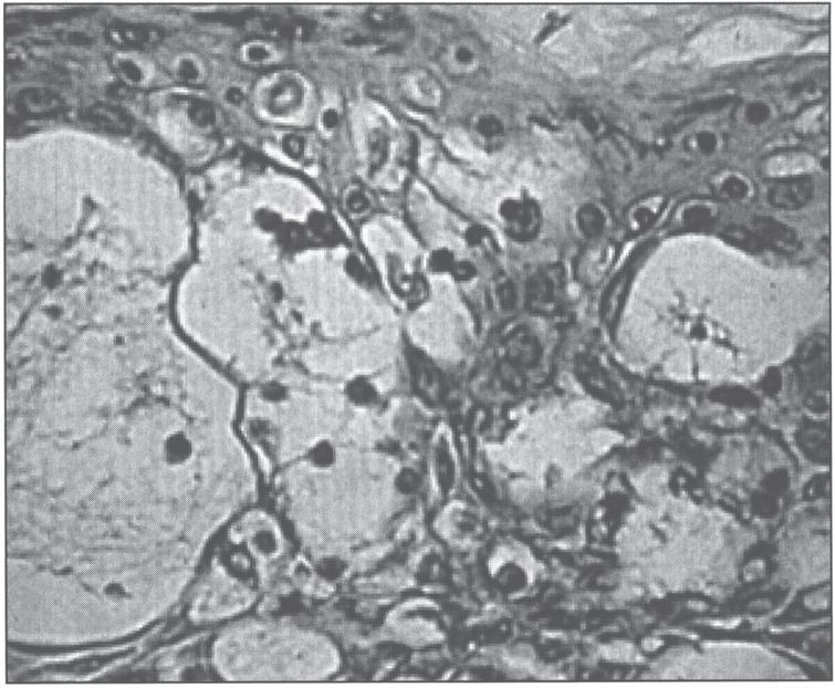 Microscopic appearance of skin in acrodermatitis enteropathica showing epidermal vacuolar degeneration.