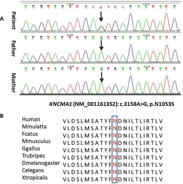 Sequence chromatogram showing one base pair substitution in KCNMA1 gene (A) and conservation of the altered amino acid shown in the ClustalW alignments (B).
