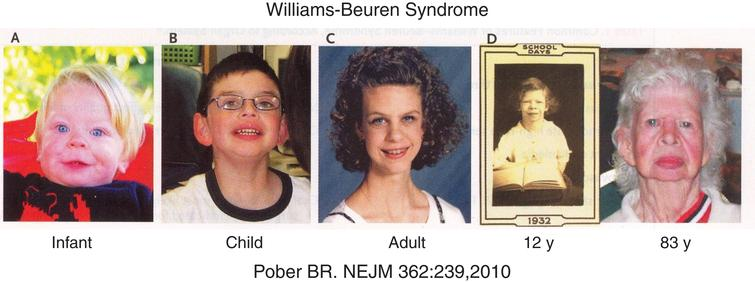 Facial characteristics (pixie-like face with flat nasal bridge, upturned nose, full lips) of a patient with the Williams-Beuren syndrome from infancy to elderly. (Reproduced with permission from Pober BR. Williams-Beuren syndrome. N Engl J Med 362:239-252,2010.)