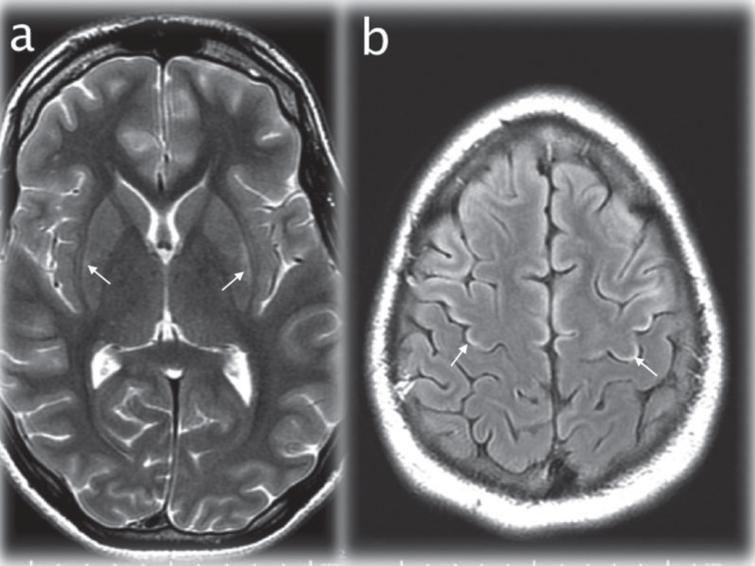 Axial T2WI (TR/TE msec, 4228/98) through the basal ganglia (a) showing maximal signal changes in the lateral putamen at 17 days after admission (arrows). Axial T2 FLAIR image (IT/TR/TE msec, 2250/10000/144) at the cerebral vertex (b) demonstrating cortical hyperintensity in parts of the frontal lobes (for instance the motor strip, arrows) that developed at 28 days after admission.