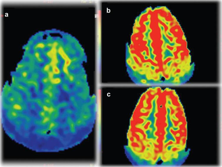 Arterial Spin Labeling (ASL) perfusion images on the final 3 exams demonstrate cerebral hypoperfusion (a) evolving to hyperperfusion (b and c).