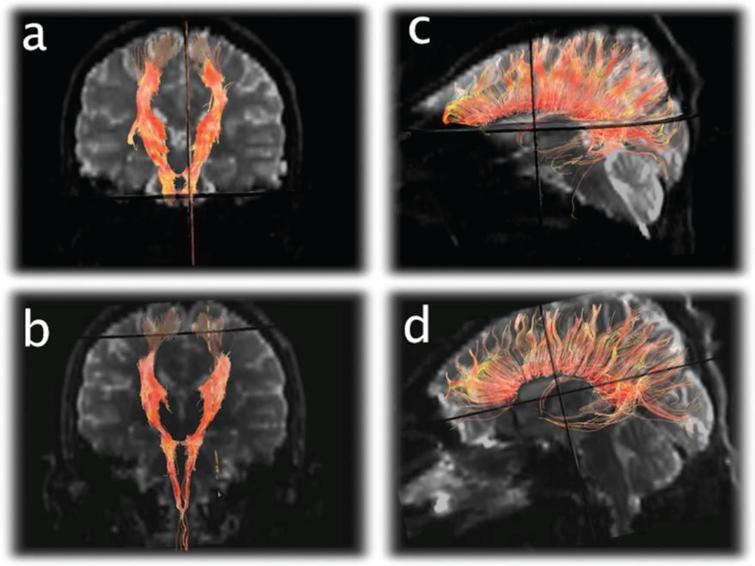 Diffusion Tensor Imaging (DTI) tractography of the corticospinal tracts displayed in the anterioroposterior plane (a and b) and corpus callosum displayed laterally (c and d) from the 1st exam (a and c) and final exam (b and d) demonstrating subtle diminution of the number of projectional and commissural fibers over time.